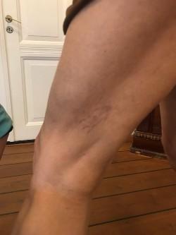 Karsprængninger på ben før 2. sklerosering