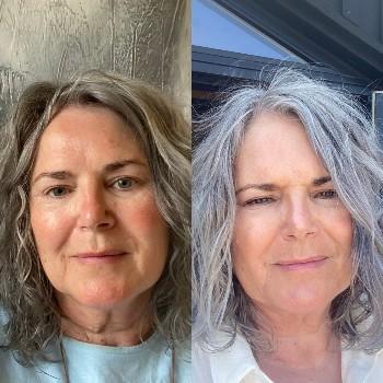 Resultat af fillerina kur før og efter billeder